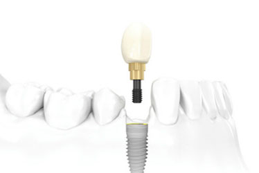 single tooth implant figure